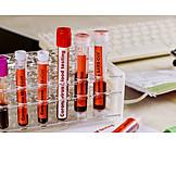 Labor, Blutprobe, Coronavirus