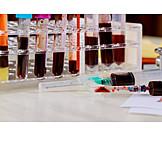 Untersuchung, Labor, Blutprobe