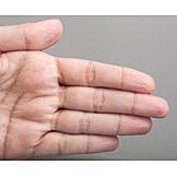 Hand, Skin, Dried, Dry Skin