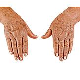 Hands, Skin, Age Spots